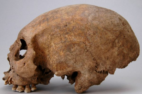 Artifiziell deformierter Schädel einer etwa 55–60 Jahre alten Frau aus dem Gräberfeld von Havor, Hablingbo sn, Gotland - Copyright: Johnny Karlsson SHM 2008-11-05